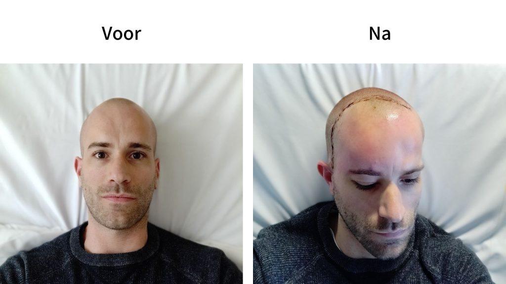 Voor en na hersenoperatie